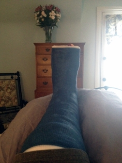 My left foot, 24-hours after breaking bad.